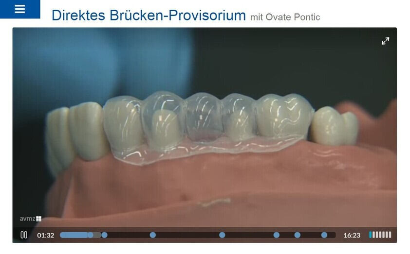 "Preview of the interactive teaching video ""Direktes Brücken-Provisorium"""